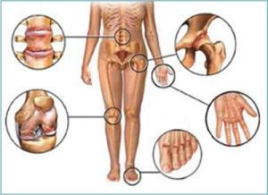 Quali sono le manifestazioni dell'artrite psoriasica